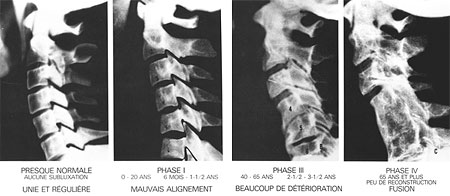 arthrose dans le cou